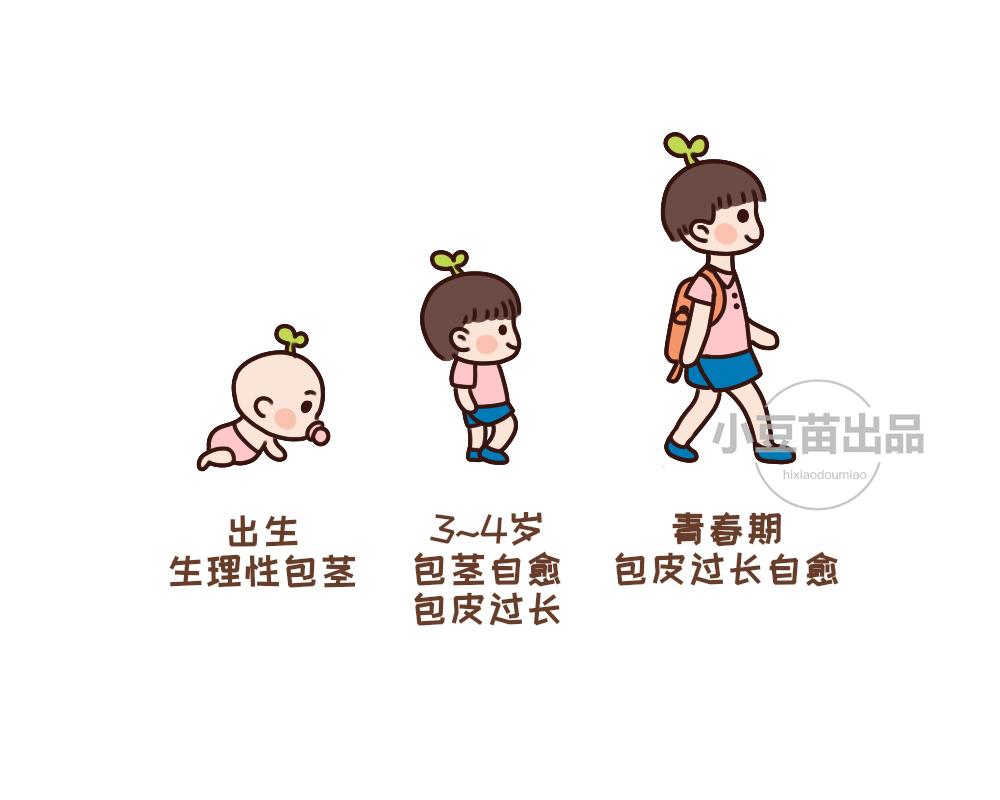 宝宝包茎翻开步骤图片